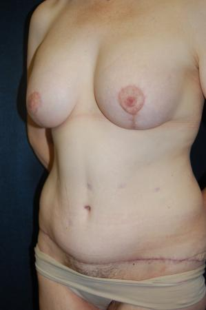 Traditional Mastopexy With Implants: Patient 18 - After Image 2