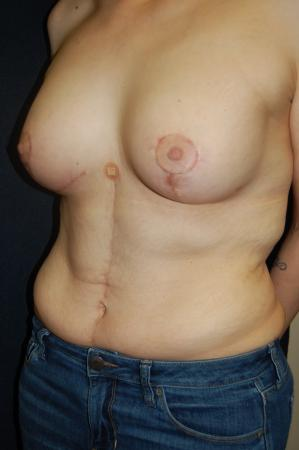 Traditional Mastopexy With Implants: Patient 17 - After Image 3