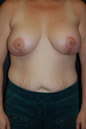 Traditional Mastopexy With Implants: Patient 19 - After Image