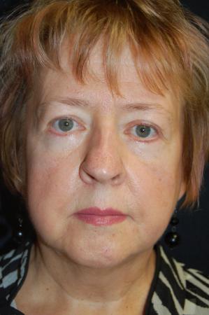 Blepharoplasty: Patient 7 - After Image