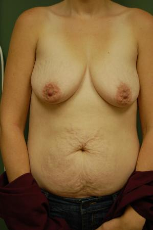 Traditional Mastopexy With Implants: Patient 4 - Before Image