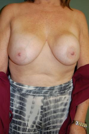Post Implant Reoperation: Patient 6 - Before Image