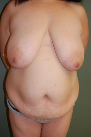 Traditional Mastopexy Without Implants: Patient 10 - Before Image