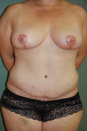 Mommy Makeover: Patient 5 - After Image