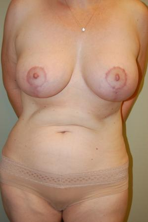 Traditional Mastopexy With Implants: Patient 6 - After Image 1