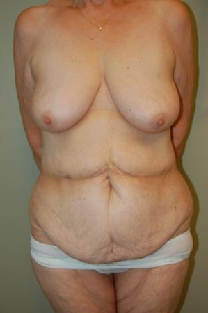 Traditional Mastopexy Without Implants: Patient 4 - Before Image