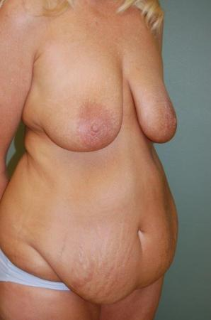 Traditional Mastopexy With Implants: Patient 7 - Before and After Image 2