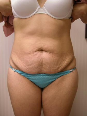 Tummy Tuck: Patient 7 - Before Image