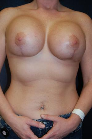 Post Implant Reoperation: Patient 8 - Before Image