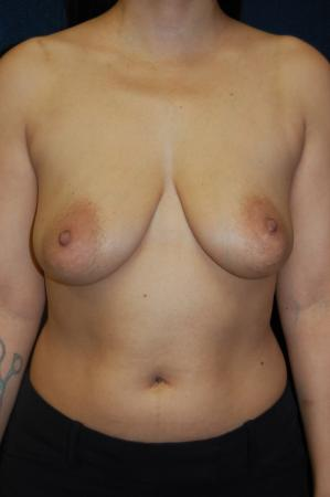 Traditional Mastopexy With Implants: Patient 10 - Before Image 1