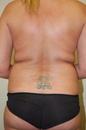 Liposuction: Patient 1 - After Image