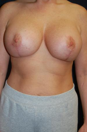 Post Implant Reoperation: Patient 8 - After Image