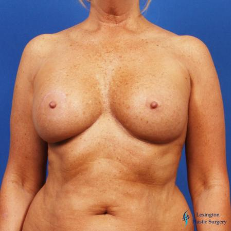 Breast Augmentation With Lift: Patient 1 - After Image 3