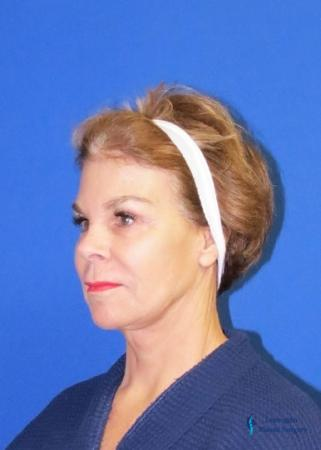 Facelift & Neck Lift: Patient 2 - After Image 2