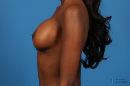 Breast Augmentation: Patient 9 - After Image 3