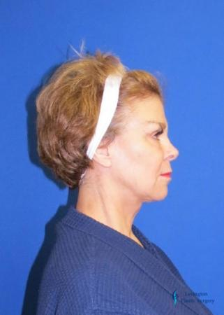 Facelift & Neck Lift: Patient 2 - After Image 5
