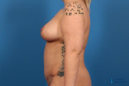 Abdominoplasty: Patient 2 - After Image 3