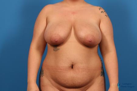 Breast Lift: Patient 5 - Before Image 1