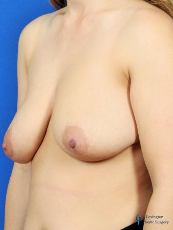 Breast Lift And Augmentation: Patient 2 - Before Image 4