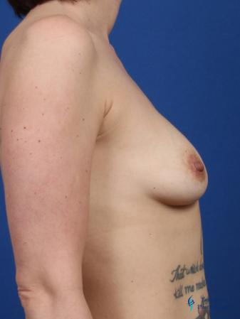 Breast Augmentation: Patient 1 - Before and After Image 3