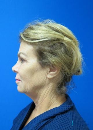 Facelift & Neck Lift: Patient 2 - Before Image 1