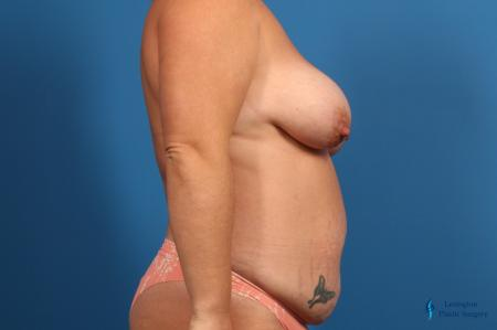 Abdominoplasty: Patient 1 - Before and After Image 5