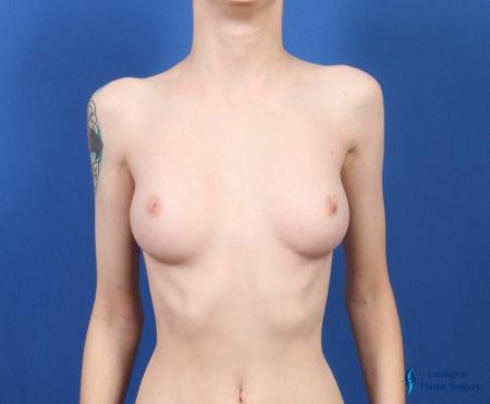 Top Surgery - Female To Male: Patient 4 - Before Image 5