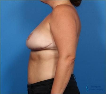 Breast Reduction: Patient 4 - After Image 5