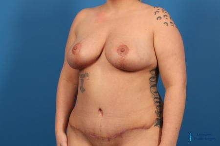 Breast Lift: Patient 5 - After Image 2