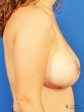 Breast Lift And Augmentation: Patient 2 - After Image 1