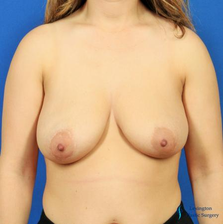 Breast Lift And Augmentation: Patient 2 - Before Image 3
