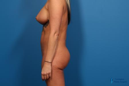 Brazilian Butt Lift: Patient 1 - After Image 4