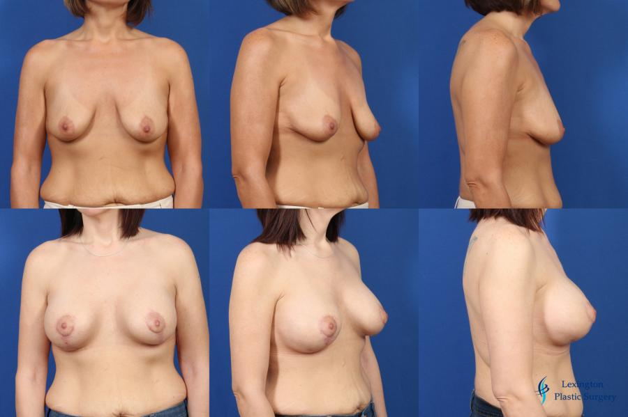 Breast Lift And Augmentation: Patient 1 - Before and After Image