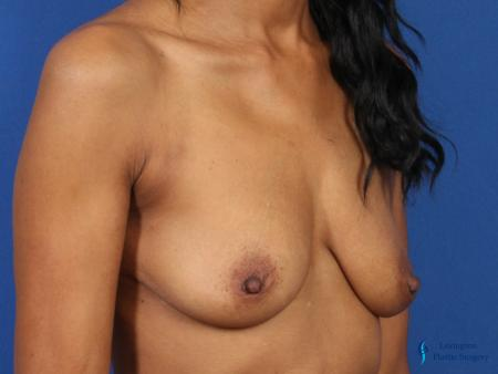 Breast Augmentation Revision: Patient 1 - Before Image 2