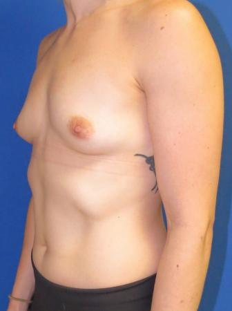 Breast Augmentation: Patient 2 - Before Image 5