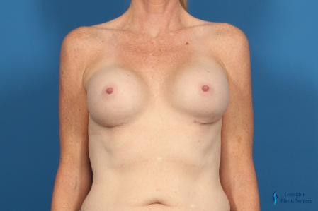 Breast Implant Exchange: Patient 1 - After Image 1