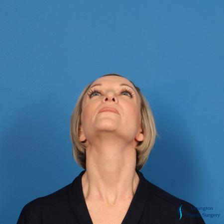 Rhinoplasty Revision: Patient 1 - After Image 3