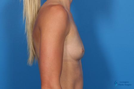 Breast Augmentation: Patient 10 - Before Image 3