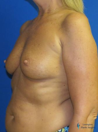 Breast Augmentation With Lift: Patient 1 - Before Image 4