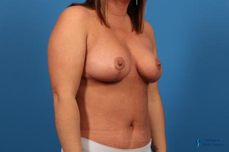 Abdominoplasty: Patient 1 - After Image 4