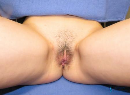 Labiaplasty: Patient 7 - After Image