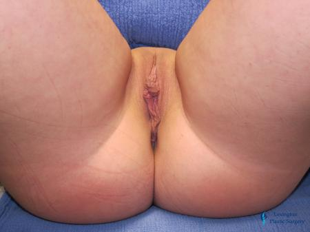 Labiaplasty: Patient 14 - Before and After Image 2
