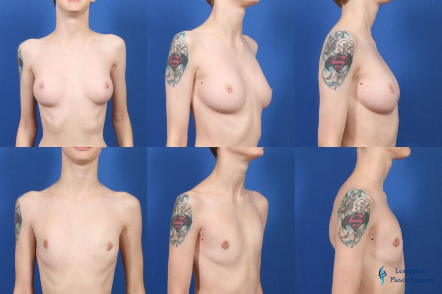 Top Surgery - Female To Male: Patient 2 - Before and After Image