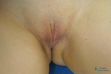 Labiaplasty: Patient 3 - After Image