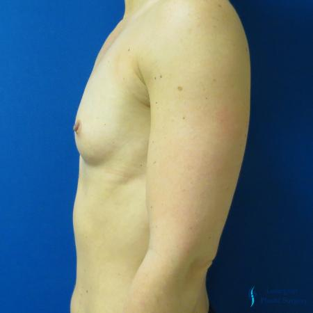 Breast Augmentation: Patient 5 - Before Image