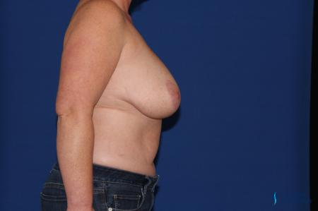 Breast Reduction: Patient 3 - Before and After Image 6
