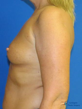 Breast Augmentation With Lift: Patient 1 - Before and After Image 5