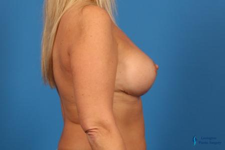 Breast Reduction: Patient 7 - After Image 5
