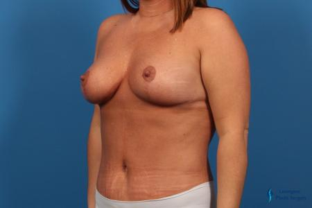 Abdominoplasty: Patient 1 - After Image 2