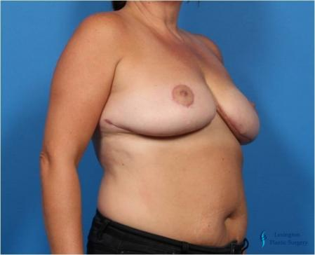 Breast Lift: Patient 2 - After Image 4